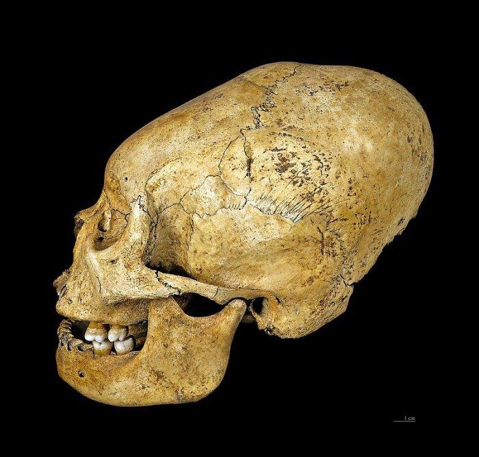 craneo-deformado-proto-nazca